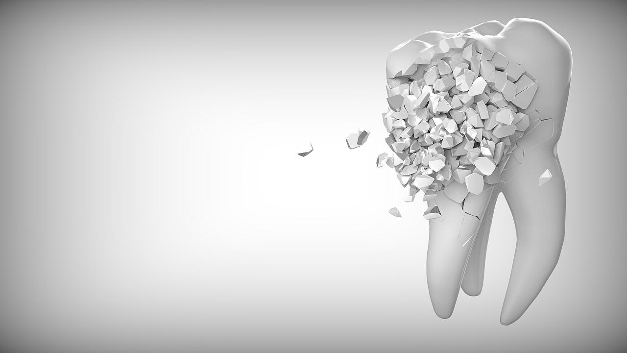 Kodėl nevertėtų atidėlioti odontologinio gydymo?